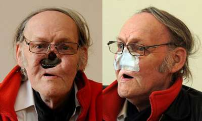 odd-news-pensioner-who-had-surgery-to-remove-a-cancerous-growth-has-been-living-without-a-nose-for-eight-years