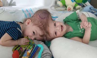 odd-news-twins-head-conjoined-recover-amazingly-after-27-hours-surgery