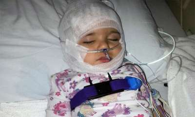 odd-news-brave-girl-who-face-20-surgeries-and-living-hopefully