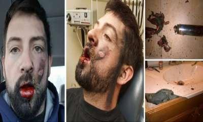 latest-news-e-cig-explodes-idaho-mans-face-loses