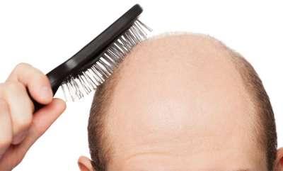 beauty-spot-how-to-avoid-hair-loss-for-mens
