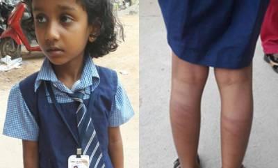 latest-news-5-year-old-brutally-beaten-by-teacher