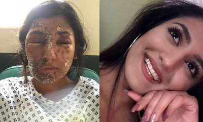 odd-news-acid-attack-on-21-year-old-girl