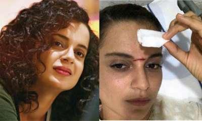 latest-news-kangana-ranaut-injured-in-jhansi-ranis-location