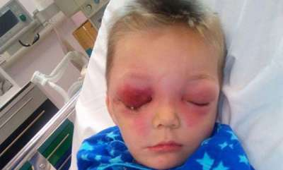 latest-news-boys-face-ravaged-by-flesh-eating-bug-after-he-fell-and-bumped-his-head