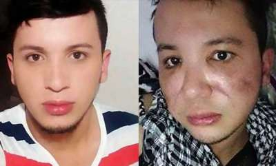 odd-news-colombian-man-left-with-rotten-face-after-botched-up-cheek-plumping-surgery