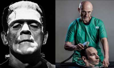 odd-news-human-head-transplant-controversial-procedure-successfully-carried-out-on-corpse