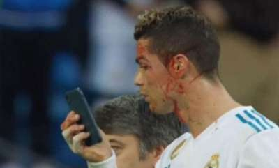 sports-news-mirror-on-the-phone-am-i-still-good-looking-checks-bloodied-cristiano-ronaldo