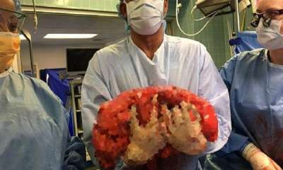 odd-news-doctors-successfully-remove-13-kg-tumor-from-63-year-old-mans-abdomen