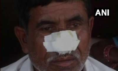 latest-news-kannauj-man-bites-off-brothers-nose-after-denied-money-for-alcohol