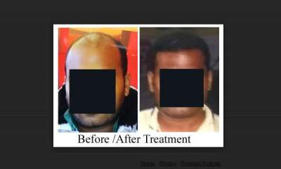 business-hairline-international-reduces-time-between-hair-transplant-sessions-from-6-months-to-1-day