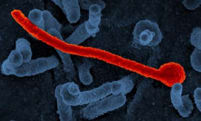 health-news-possible-sexual-transmission-of-ebola-virus