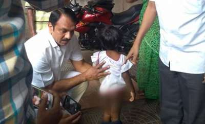 latest-news-daddy-burnt-me-when-i-was-eating-hyderabad-4-year-old-tells-rescuers