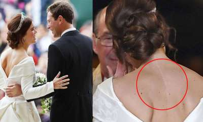 odd-news-princess-eugenie-wedding-royal-inspires-others-by-showing-scar