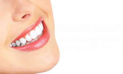 focus-smile-dental-implant