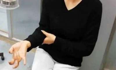 latest-news-chinese-woman-lost-all-sensation-in-her-fingers-after-a-week-long-mobile-phone-binge