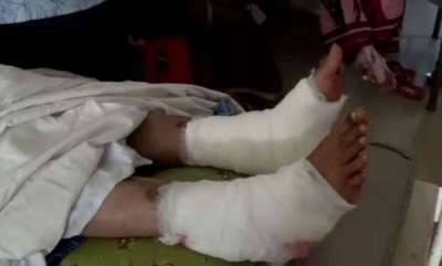 latest-news-doctor-operated-patients-right-leg-instead-of-left