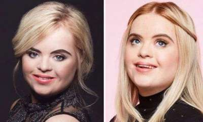 womens-world-model-with-down-syndrome-is-major-cosmetic-brands-latest-ambassador