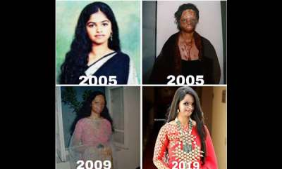 womens-world-acid-attack-survivor-laxmi-agarwal-share-heart-breaking-image