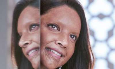 latest-news-chhapaak-first-look-poster