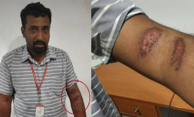 latest-news-sunburn-cases-reported-from-kottayam