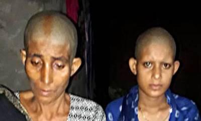 latest-news-2-women-assaulted-tonsured-for-resisting-attack