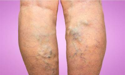 family-health-varicose-veins-symptoms-and-treatment
