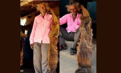 latest-news-man-who-dont-wash-hair-for-40-years