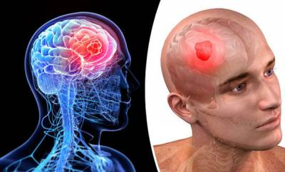 family-health-brain-tumor-symptoms-and-treatment