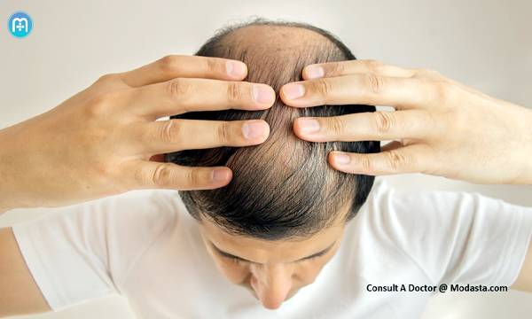 Onion Juice To Treat Hair Loss