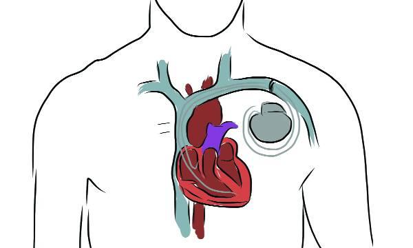 uploads/news/2018/11/267798/pacemaker261118.jpg