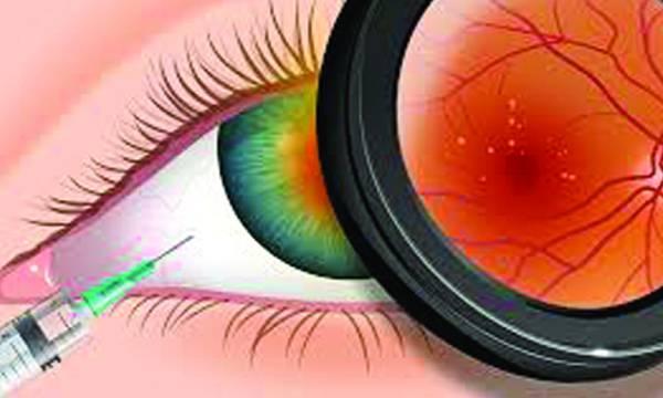 uploads/news/2019/01/282682/eyeproblms2301119d.jpg
