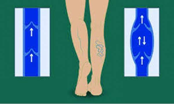 Varicose veins Symptoms and treatment
