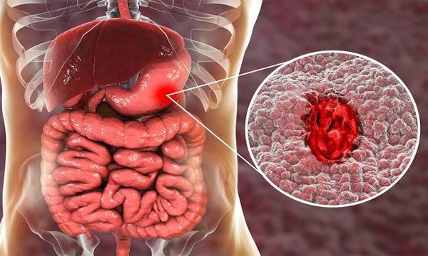 Ulcer Symptoms and treatment