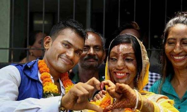 life-style-acid-attack-victim-found-her-life-partner