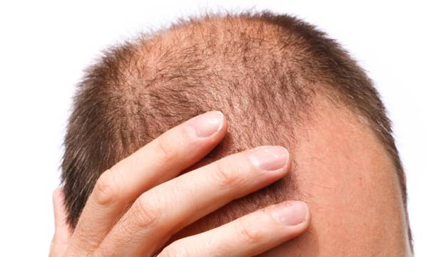 life-style-dont-fret-about-losing-hair-study-finds-bald-men-look-more-confident-attractive