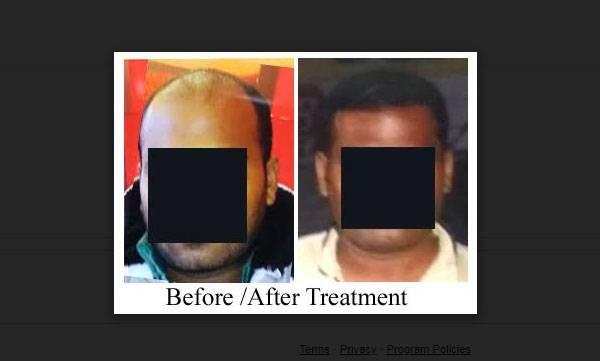 uploads/news/2018/06/226654/Treatment.jpg