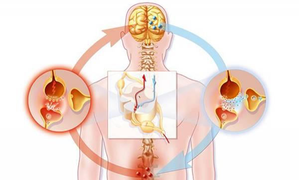 uploads/news/2019/04/299086/Neurology030419a.jpg